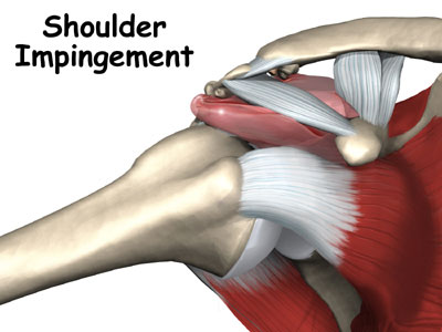 shoulder_impingement_intro0