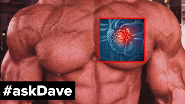 HEART ATTACKS IN BODYBUILDERS LEADING CAUSE
